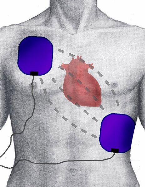 defibrillation20electrode20position